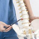 Mostrando hernia de disco con Acupuntura